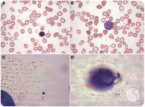 Unusual finding of a megakaryocyte in a peripheral blood smear