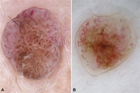 How to diagnose nonpigmented skin tumors: A review of