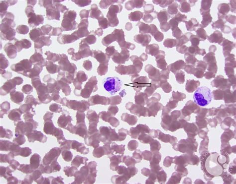 Peripheral smear showing cocci in pairs within the
